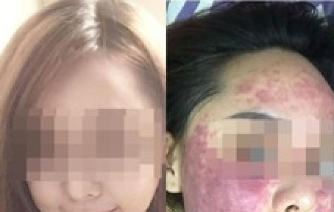 Kiều nữ Hà Nội hỏng da sau khi bôi kem trị mụn mua trên mạng