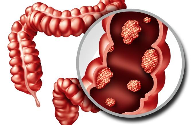 Bệnh viêm đại tràng và những nguyên tắc vàng chữa bệnh