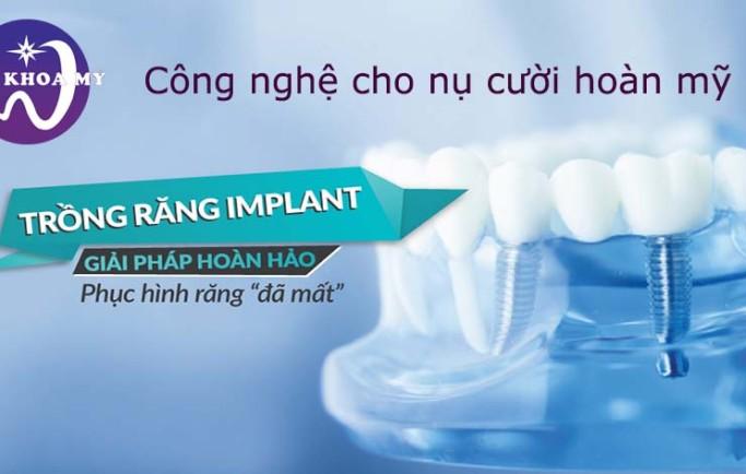 Cấy răng Implant và những điều bạn nên biết