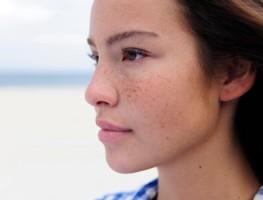 Nám da tái đi tái lại nhiều lần phải trị như thế nào cho hiệu quả?