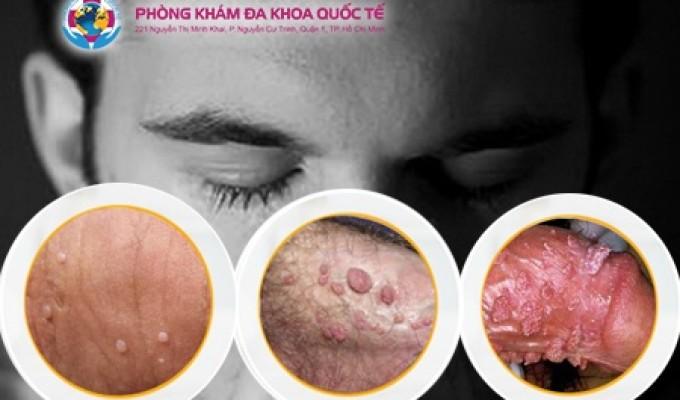 Phương pháp chữa trị bệnh sùi mào gà ở nam giới