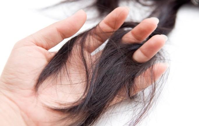 Rụng tóc dẫn đến hói đầu, nỗi khổ thầm kín