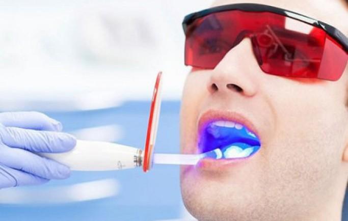 Tẩy trắng răng – Những điều cần biết để tránh tiền mất tật mang