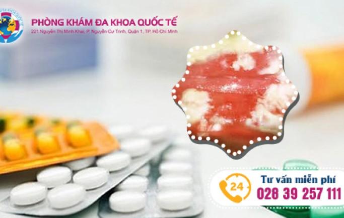 Thuốc đặc điều trị viêm lộ tuyến cổ tử cung hiệu quả.