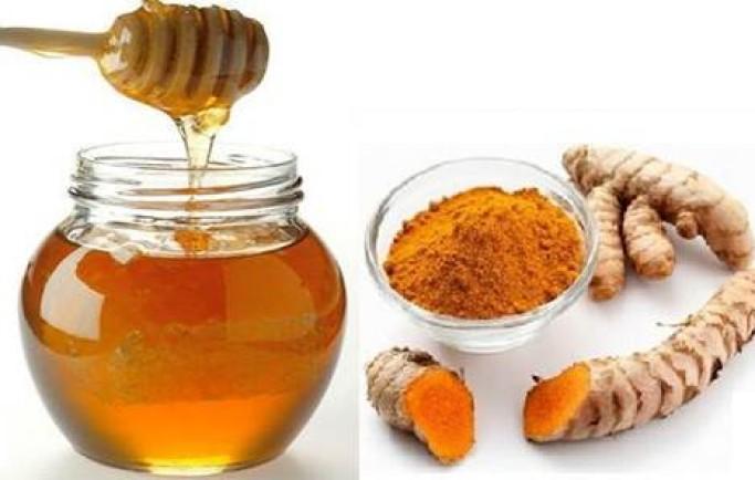 Trị nám da mặt bằng mật ong hiệu quả nhất
