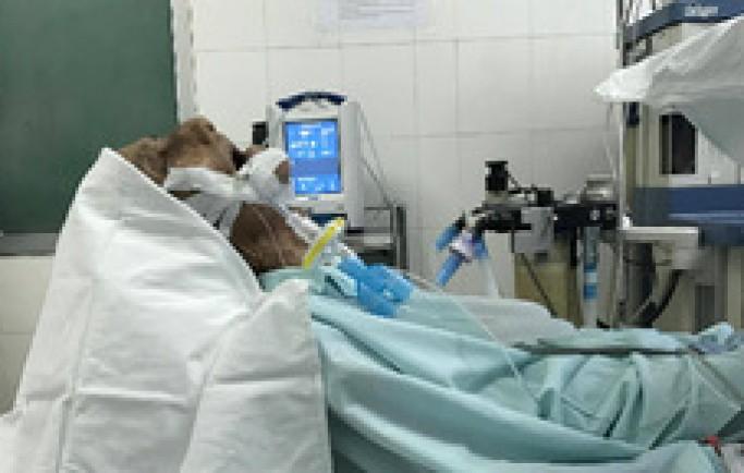 Khối polyp mũi khiến cụ ông ngủ ngồi suốt 40 năm