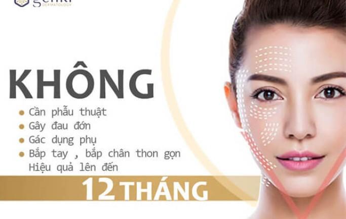 Top 5 công nghệ căng da mặt hiệu quả nhất hiện nay